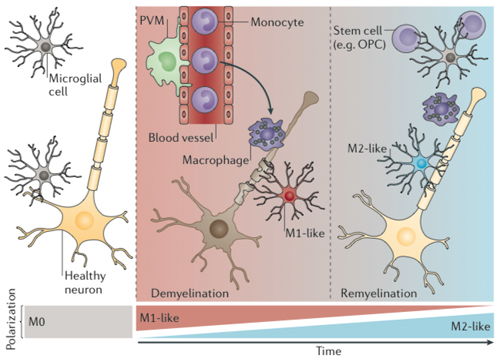 <strong>Shades of microglia.</strong> In the brain and spinal cord, microglia continuously survey their microenvironment, a recently identified behavior that several researchers are calling M0. Neuronal dysfunction or damage can activate microglia to produce pro-inflammatory cytokines, called M1. Meanwhile, macrophages lurking on the edge of the brain and in the blood may join the inflammatory response. Over time, depending on the type of brain injury or environmental factors, microglia and their monocyte/macrophage cousins may acquire an anti-inflammatory phenotype, known as M2, which causes them to remove debris and promote regeneration. The activation states of microglia and macrophages can mix and switch. Reprinted by permission from Macmillan Publishers Ltd.: <em>Nat. Rev. Neurosci.</em> 2014 May;15(5):300-12. doi: 10.1038/nrn3722, copyright 2014.