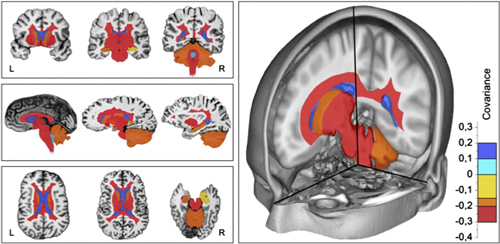 Colored image of the MRI scans of OCB-positive patients. The blue colors represent a higher value of covariance in the OPLS analysis (above zero), and the yellow and red colors represent a lower value of covariance (below zero). Reprinted from <em>J. Neuroimmunol.</em>, Ferreira <em>et al</em>. http://dx.doi.org/10.1016/j.jneuroim.2014.06.010 Copyright 2014, with permission from Elsevier.