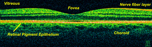 Optical coherence tomography of a normal retina at 800 nm and an axial resolution of 3 micrometers.