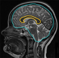 Midsagittal view of a patient's brain with the corpus callosum and the intracranial skull surface area outlined. Credit: Granberg <em>et al.</em>, <em>Multiple Sclerosis Journal</em> DOI: 10.1177/1352458514560928 © 2014 by the authors. Reprinted by permission of SAGE.