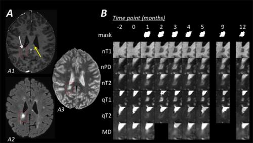new mri technique visualizes lesion repair multiple sclerosis