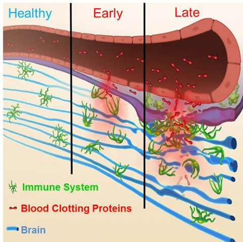 coagulation of proteins essay Proteins play an important role in the human body  protein metabolism essay sample pages: 6  we can measure the mass of its coagulation in acid.