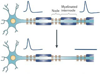 Fig. 4. Without myelin, axons transmit information slowly, inefficiently. Normally, action potentials hop over myelinated regions in a process known as saltatory conduction. When myelin breaks down, action potentials move slowly through these regions rather than hop over them. In addition, a lack of myelin leads to leakage of ions across the membrane and signal interference between neighboring axons.