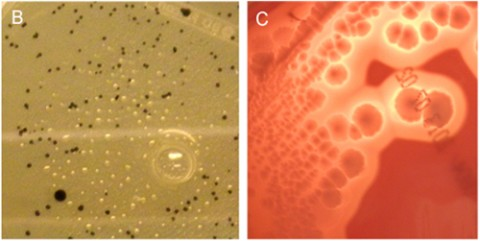 On the left, typical black <em>C. perfringens</em> morphology from a diluted fecal sample of a patient with clinically isolated syndrome. On the right, typical <em>C. perfringens</em> morphology on Schaedler blood agar plates (Rumah <em>et al</em>., 2013).