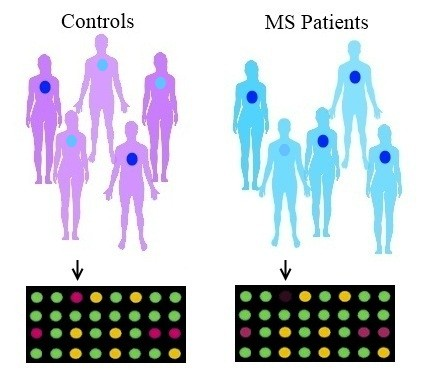 Fig. 2. Genome-wide association studies (GWAS) and MS. GWAS scan hundreds of thousands of points along the genome and identify single-nucleotide differences between MS cases and controls. In this image, one variant of a gene (represented by the light blue dot) is more prevalent among control subjects, whereas another variant of the same gene (represented by the dark blue dot) is more prevalent  among people who have MS. The microarrays at the bottom of the image register a strong signal for the control variant among the control subjects but a weak signal among the individuals with MS (arrows).