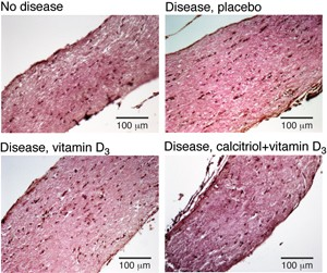 One calcitriol dose plus supplementary vitamin D<sub>3</sub> reversed the disease-induced swelling of the optic nerve. © C. E. Hayes, U. Wisconsin
