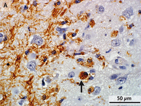 Fig. 2. Multiple sclerosis plagues gray matter too. Because white matter is replete with myelin, damage associated with multiple sclerosis was first discovered in white matter. But gray matter—such as the cerebral cortex—also suffers in multiple sclerosis. Evidence of inflammation, such as the presence of macrophages (arrow) and T cells, is present in this brain region.