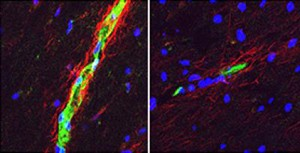 Postmortem cerebellar tissue samples show greater sphingosine-1-phosphate receptor 2 expression (red) in a woman with MS (left) than in a man (right). Image courtesy of Washington University School of Medicine.
