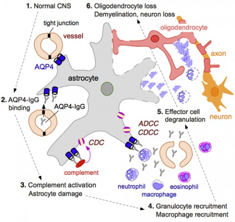Model of the effects of the aquaporin-4 antibody in NMO patients: Once the aquaporin-4 antibody enters the CNS, it binds to the water channels on the astrocytes (1; 2). The antibody coat activates the complement system, which results in the formation of a membrane attack complex that punches holes in the astrocytes, a process called complement-dependent cytotoxicity, or CDC (3). The antibody coat also leads to the recruitment of immune cells that further damage the astrocyte, a process called antibody-dependent cellular cytotoxicity, or ADCC (4; 5). Once the astrocytes die, oligodendrocytes and nerve cells die as well, and without the oligodendrocytes, the myelin sheath around the nerve fibers disappears (6). Credit: Alan Verkman, University of California, San Francisco