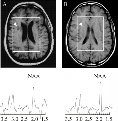 Proton MR spectra from a 28-year-old female patient with MS. The N-acetylaspartate (NAA) peak is lower in the lesion (A) than in a region of normal-appearing white matter (B) indicating neuro/axonal loss and dysfunction in the lesion.