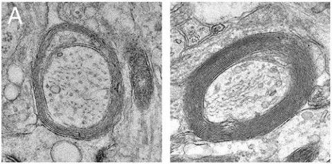 Electron micrographs depict increased myelin in slice cultures following treatment with IFNγ-stimulated exosomes (right) compared to untreated control (left). From Pusic <em>et al</em>., 2014.