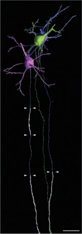 High-resolution renderings of three representative neurons showing three myelination modes. Myelin is white, and arrowheads mark boundaries. Scale bar: 20 μm. Credit: Tomassy <em>et al</em>., <em>Science</em> 2014.