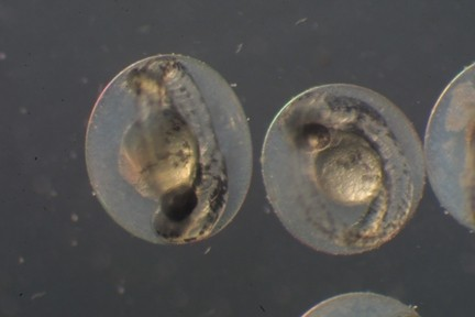 Fig. 2 Zebrafish embryos. Some researchers are using zebrafish embryos (pictured here at 3 days old) to screen for drugs that might spur myelination. These organisms are inexpensive, fast-breeding, and see-through--features that allow researchers to easily examine how particular genes drive myelination and to observe the effects of various compounds on the process.