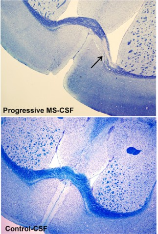 A comparison between brain sections derived from mice injected with CSF from either healthy people or those with progressive MS. A myelin stain reveals an extensive lesion in the corpus callosum of the mouse in the experimental group. Credit: Massimiliano Cristofanilli, Tisch MS Research Center