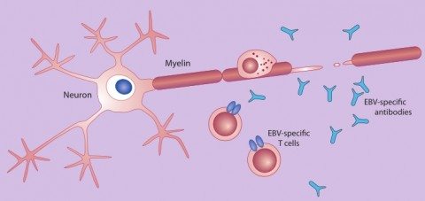 Fig. 2. Mistaken identity. In multiple sclerosis, immune cells attack the myelin sheath that surrounds nerve cells. Hypotheses to explain the assault vary, and some involve EBV. One idea is that T cells or antibodies that recognize EBV might mistake myelin proteins for EBV, in a process called molecular mimicry.